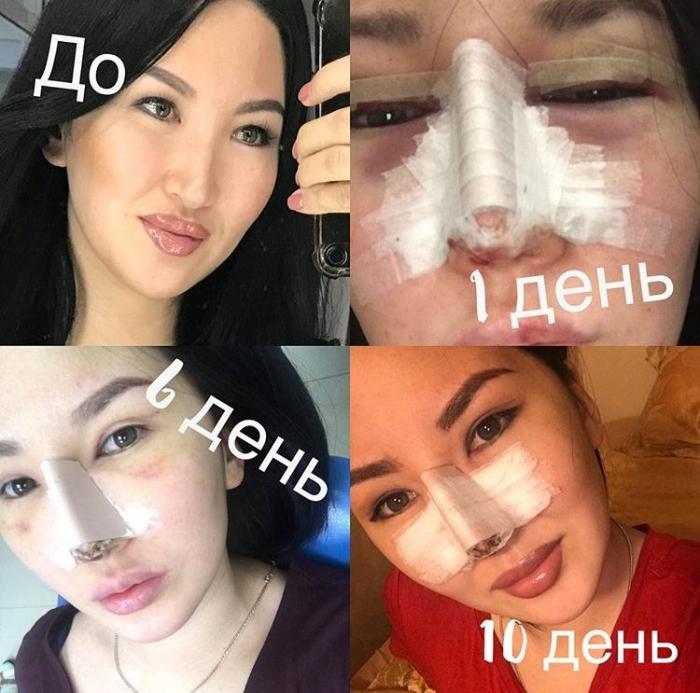 mJuXg7Bo Известная якутская красавица сделала сразу две пластические операции на лице